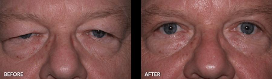 , Eyelid Surgeries